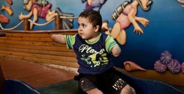 bambino senza braccia