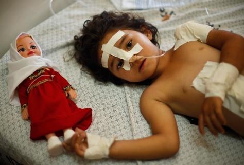Ragazza palestinese di 4 anni, Shayma Al-Masri, che fonti ospedaliere riferiscono che è stata ferita in un attacco aereo israeliano che ha ucciso sua madre e due dei suoi fratelli, ora si trova su un letto accanto alla sua bambola.. La ragazza e suo padre sono stati gli unici sopravvissuti della famiglia. REUTERS/Mohammed Salem